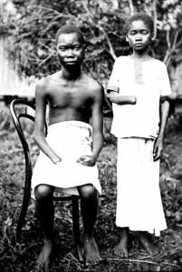 Mola_Yoka_perdieron_manos_torturas_soldados_Congo